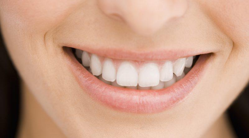 diş çürümesini önlemek için ne yapmalı
