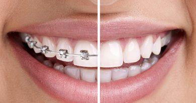 Diş Çarpıklığının Tedavisinde Görünmeyen Dış Teli